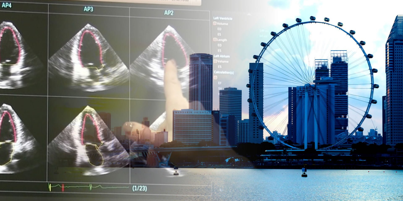 Singapore approves world-first medical AI software for vascular ultrasound analysis